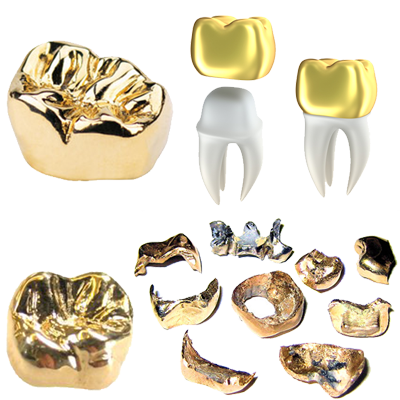 We buy gold dental caps and gold crowns!